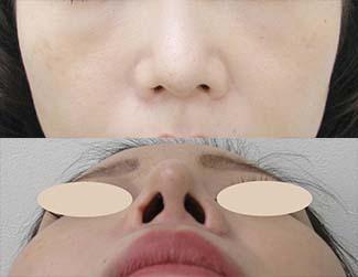 鼻尖縮小の症例写真1(術後)