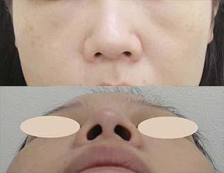 鼻尖縮小の症例写真1(術前)