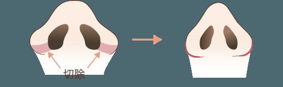 小鼻縮小の手術方法