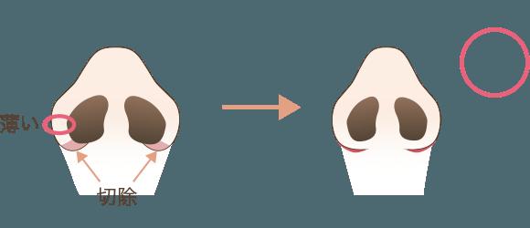 小鼻縮小の効果が出やすいタイプの鼻