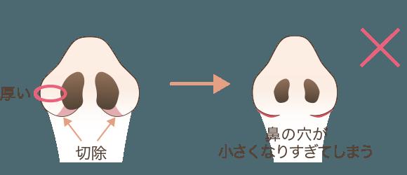 小鼻縮小の効果が出にくいタイプの鼻