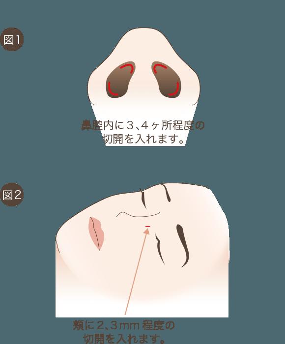 鼻骨骨切りの手術方法1