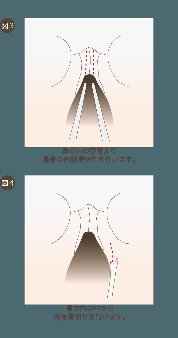 鼻骨骨切りの手術方法2