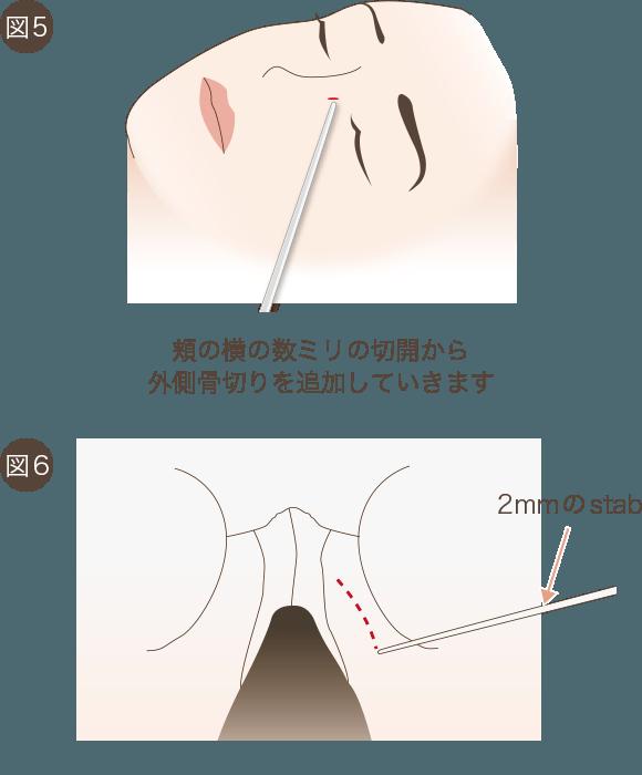 鼻骨骨切りの手術方法3
