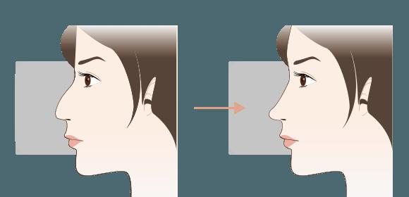 わし鼻修正の手術効果