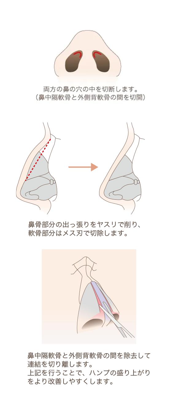 わし鼻修正(ハンプ修正)の手術方法