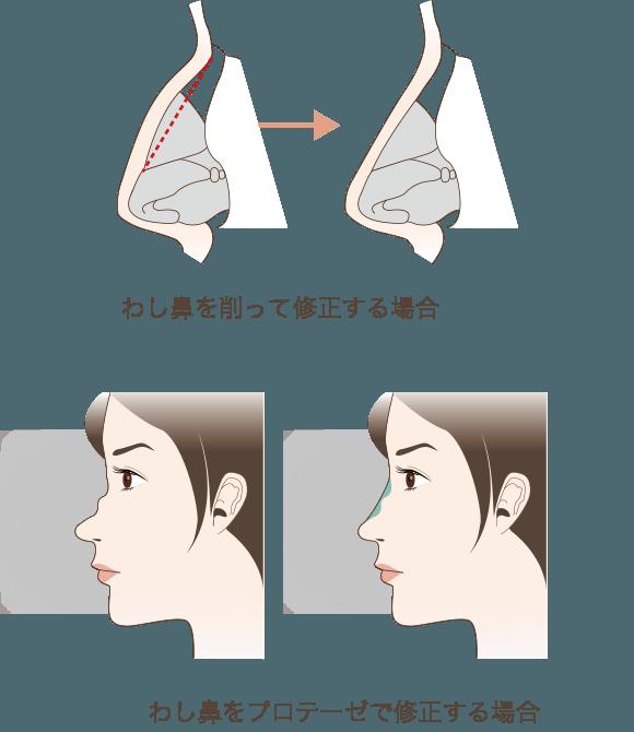 軽度のわし鼻であればプロテーゼで目立たなくさせることも可能
