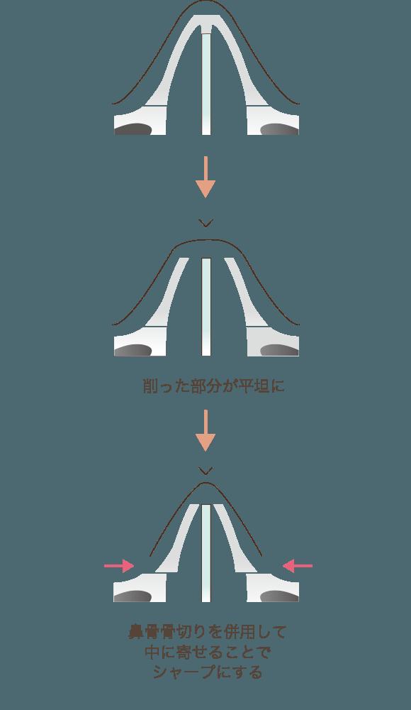 わし鼻修正と鼻骨骨切りの併用を説明する図