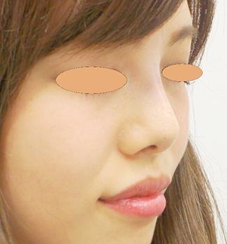 鼻のヒアルロン酸注入の症例(術後)斜め