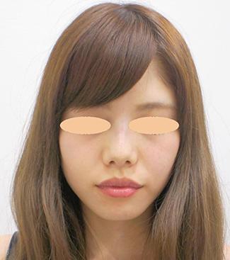 鼻のヒアルロン酸注入の症例(術後)