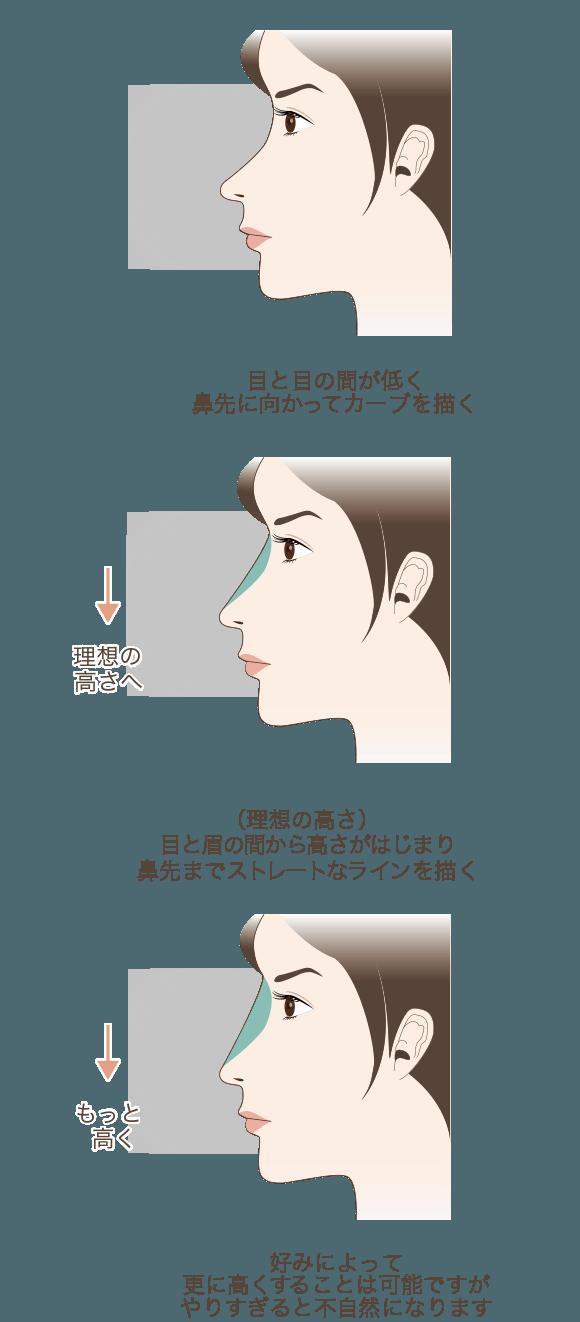 (理想の高さ)目と眉の間から高さがはじまり鼻先までストレートなラインを描く