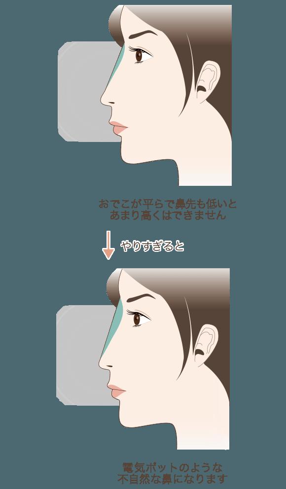 おでこが平らな患者様はやりすぎると電気ポットのような 不自然な鼻になります