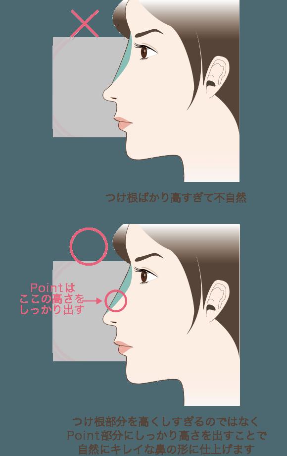 つけ根部分を高くしすぎるのではなくPoint部分にしっかり高さを出すことで自然にキレイな鼻の形に仕上げます