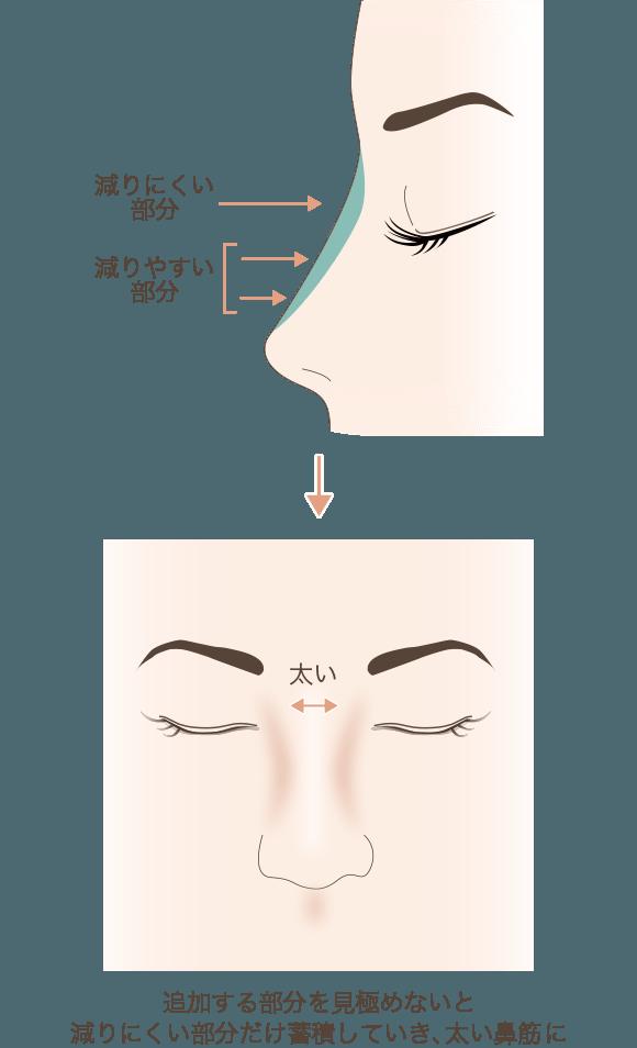 追加する部分を見極めないと減りにくい部分だけ蓄積していき、太い鼻筋に
