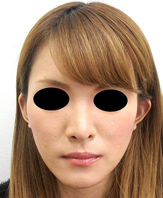 鼻骨骨切り、鼻中隔延長の症例写真(術後)