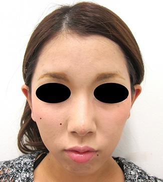 鼻骨骨切り、鼻尖縮小の症例写真(術後)