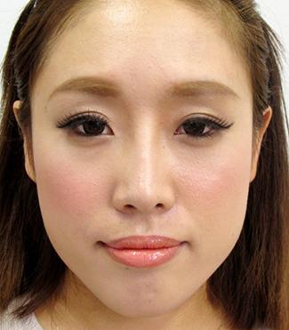 鼻プロテーゼ・鼻中隔延長の症例写真(術後)