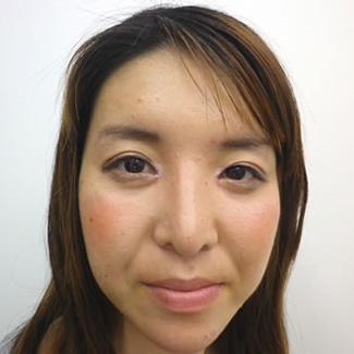 隆鼻術(鼻プロテーゼ)の症例写真(術後)