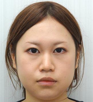 小鼻縮小の症例写真(術後)