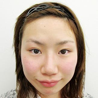 隆鼻術 鼻プロテーゼの症例写真(術後)
