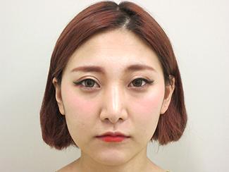 鼻骨骨切りの症例写真(術後)