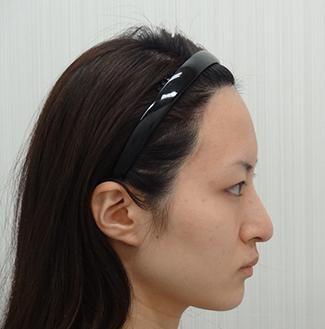 わし鼻修正(ハンプ修正)の症例写真(術後)