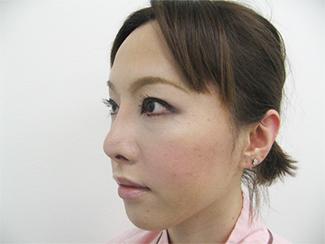 隆鼻術で高くして鼻筋を通すイメージの症例(術後)