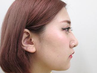 鼻骨骨切りで鼻を細くして鼻筋を通すパターンの症例(術後)横向き
