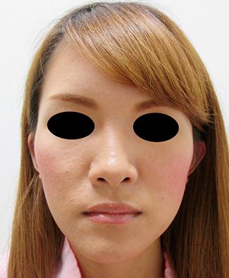 鼻骨骨切り、鼻中隔延長の症例写真(術前)