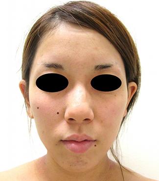 鼻骨骨切り、鼻尖縮小の症例写真(術前)