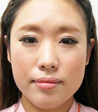 鼻プロテーゼ・鼻中隔延長の症例写真(術前)