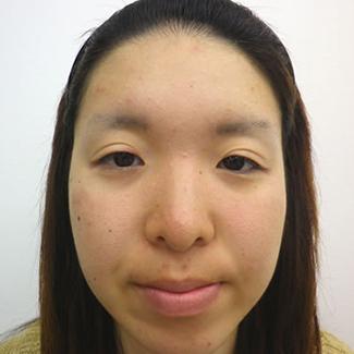 隆鼻術(鼻プロテーゼ)の症例写真(術前)