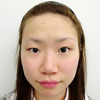 隆鼻術 鼻プロテーゼの症例写真(術前)