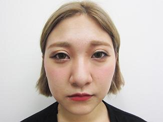 鼻骨骨切りの症例写真(術前)