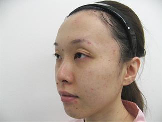 隆鼻術で高くして鼻筋を通すイメージの症例(術前)