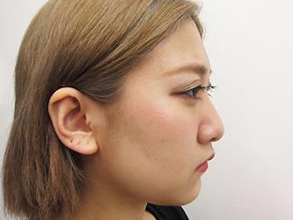 鼻骨骨切りで鼻を細くして鼻筋を通すパターンの症例(術前)横向き