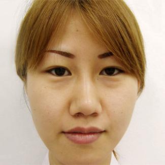 理想値を考えず、隆鼻術を行ってしまったパターンの症例(術前)