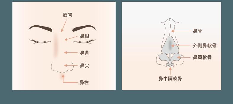 鼻骨骨切りの解説図