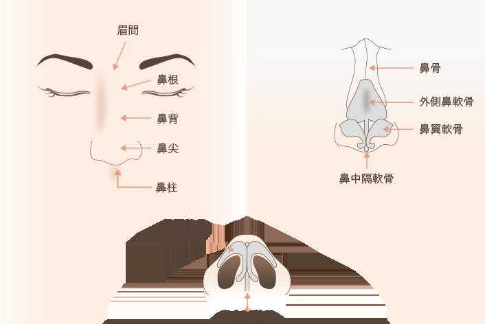 鼻尖縮小(だんご鼻修正)の解説図