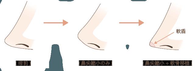耳介軟骨移植の解説図