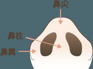 小鼻縮小の解説図