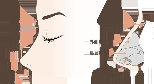 鼻中隔延長の解説図