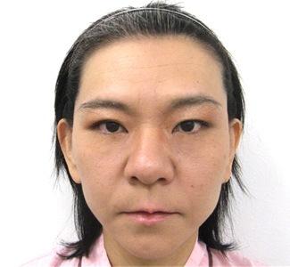 エラボトックスの症例写真2(術後)