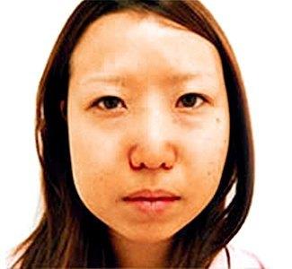 エラボトックスの症例写真1(術前)