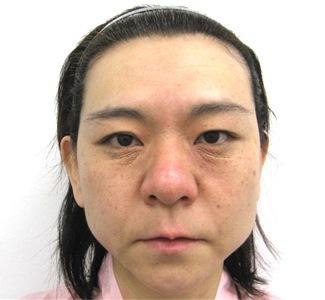 エラボトックスの症例写真2(術前)