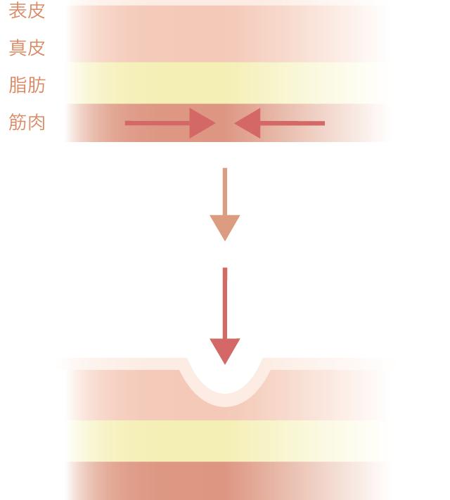 皮下組織イメージ図