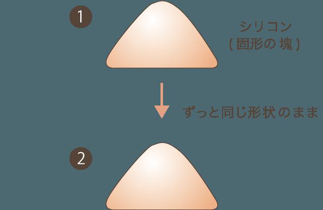 非吸収製剤について(レディエッセ、アクアミドなど)の解説図1