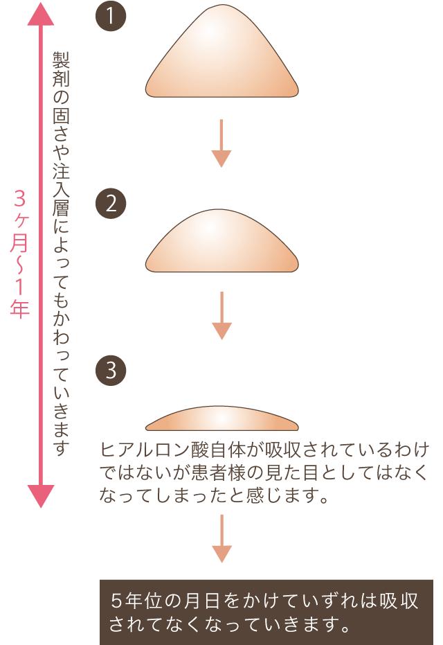 非吸収製剤について(レディエッセ、アクアミドなど)の解説図2
