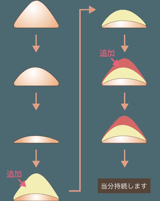 ヒアルロン酸の追加について解説図