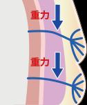 靭帯のたるみ